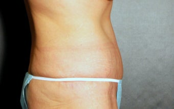 35-44 year old woman treated with Tummy Tuck 3220296