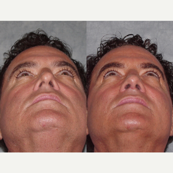 45-54 year old man treated with Revision Rhinoplasty before 3224075