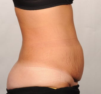 No Drain Tummy Tuck 1339946