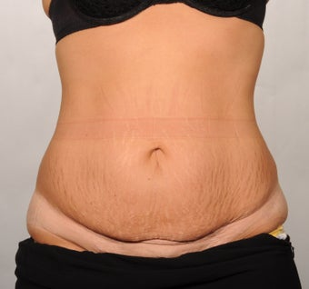 No Drain Tummy Tuck before 1339946