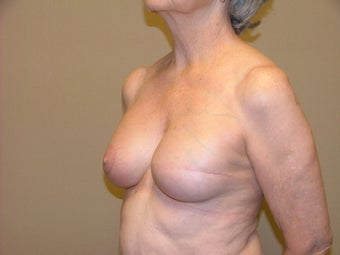 Breast Reconstruction 735403