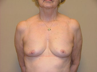 Breast Reconstruction before 735403