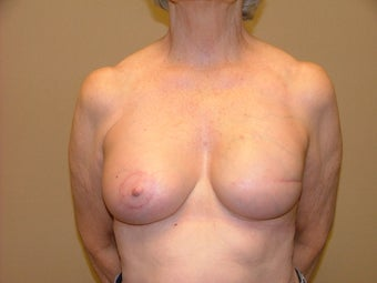 Breast Reconstruction after 735403