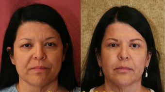 facial fat grafting and lowr belpharoplasty