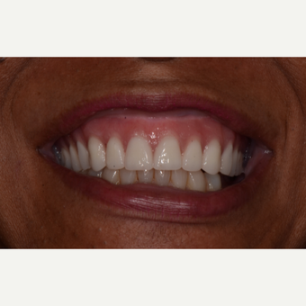 45-54 year old man treated with Teeth-in-a-Day Implants before 3735949