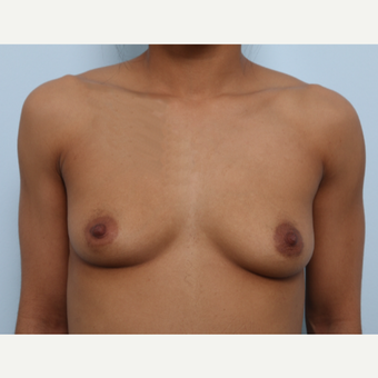 Breast Augmentation before 3459490