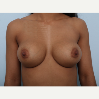Breast Augmentation after 3459490