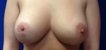 Breast Lift (Mastopexy) and Implant after 1497967