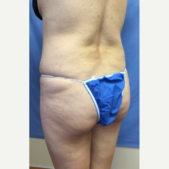 35-44 year old woman treated with Smart Lipo before 3371559