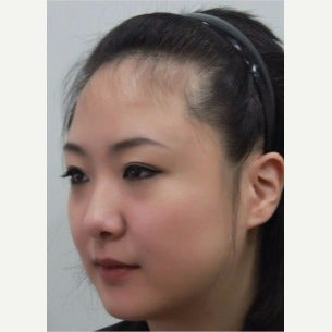 25-34 year old woman treated with Forehead Reduction with Hair Transplant before 1973841