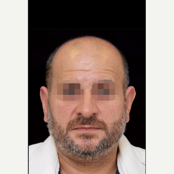 45-54 year old man treated with Otoplasty after 3735136