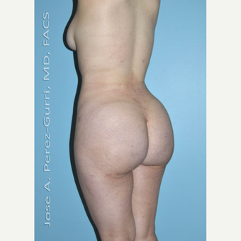 18-24 year old woman treated with Brazilian Butt Lift after 3056478