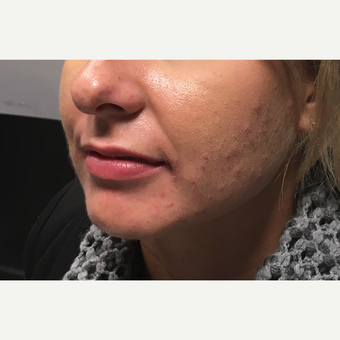 25-34 year old woman treated with Juvederm Ultra before 3802203