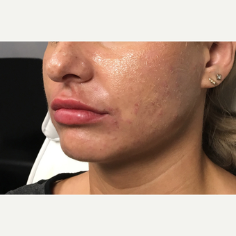 25-34 year old woman treated with Juvederm Ultra after 3802203