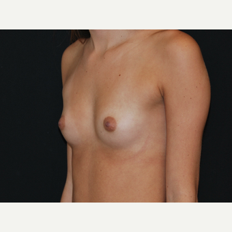 18-24 year old woman treated with Breast Implants before 3651148