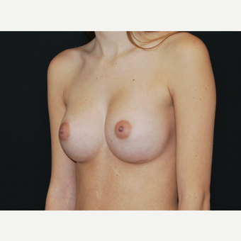 18-24 year old woman treated with Breast Implants after 3651148