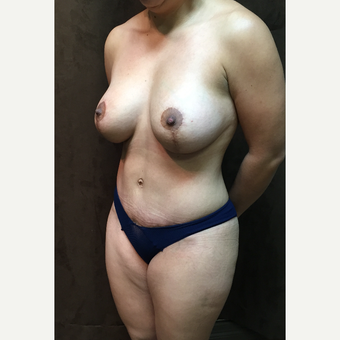 35-44 year old woman treated with Mommy Makeover after 3027760