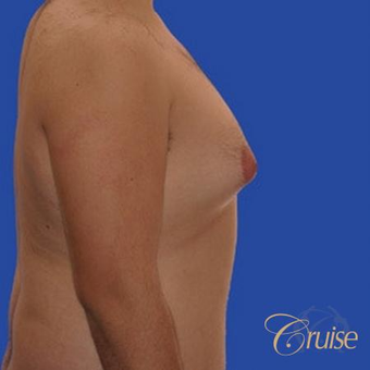 34 yr old man treated with male breast reduction surgery to get rid of his moderate gynecomastia before 3502198