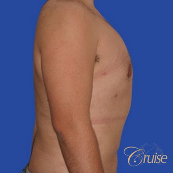 34 yr old man treated with male breast reduction surgery to get rid of his moderate gynecomastia after 3502198