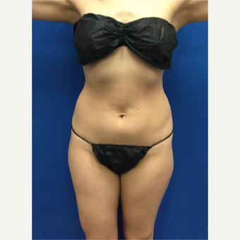 25-34 year old woman treated with Liposuction before 3142382
