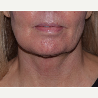 55-64 year old woman treated with laser-assisted Neck Lift after 3638972