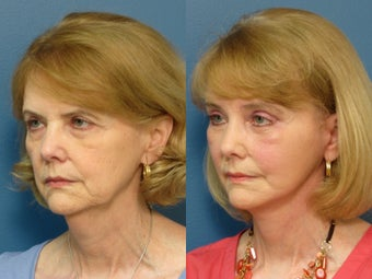 Brow Lift, Facelift & Lower Eyelid Surgery 338627