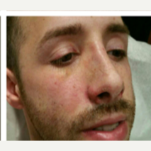 25-34 year old man treated with Rhinoplasty after 3687149