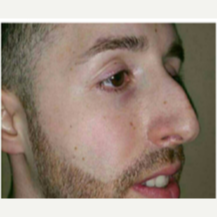 25-34 year old man treated with Rhinoplasty before 3687149