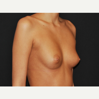18-24 year old woman treated with Breast Implants before 3651185