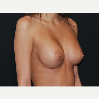 18-24 year old woman treated with Breast Implants after 3651185