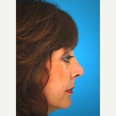 45-54 year old woman treated with Revision Rhinoplasty 1847712