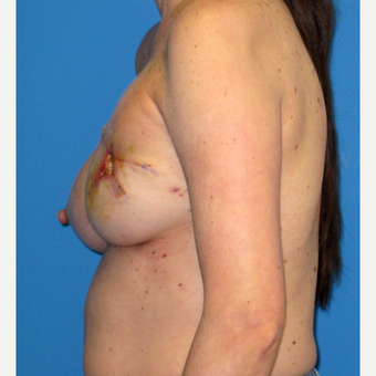 55-64 year old woman treated with Breast Reconstruction before 3266404