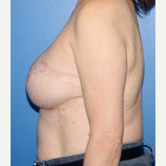 55-64 year old woman treated with Breast Reconstruction after 3266404