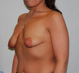 38 Year Old Female-Breast Lift with Implants before 1277627