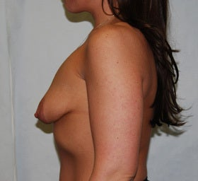 38 Year Old Female-Breast Lift with Implants 1277627