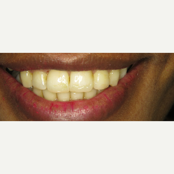 35-44 year old woman treated with Braces