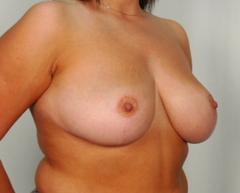 28 year old woman treated with Breast Reduction after 3026856