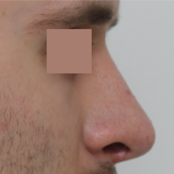25-34 year old man treated with Revision Rhinoplasty after 3584838