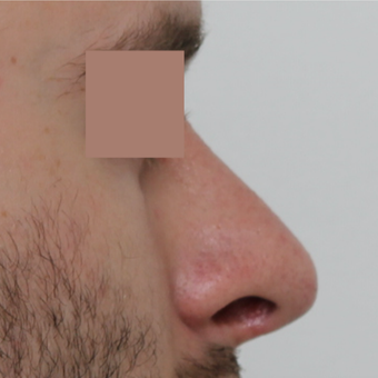 25-34 year old man treated with Revision Rhinoplasty before 3584838