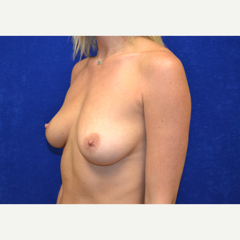 25-34 year old woman treated with Breast Augmentation before 3664413