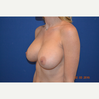 25-34 year old woman treated with Breast Augmentation after 3664413