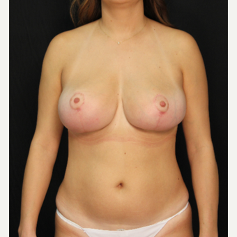 32 year old female bilateral breast reduction after 3576036
