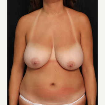 32 year old female bilateral breast reduction before 3576036