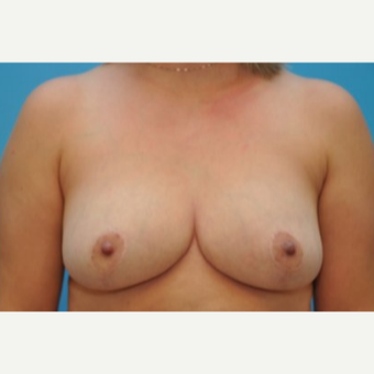 25-34 year old woman treated with Breast Reduction after 3690044