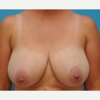 25-34 year old woman treated with Breast Reduction before 3690044