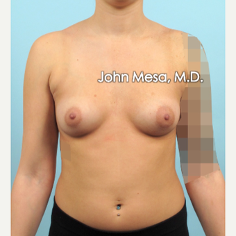 18-24 year old woman treated with Sientra Breast Implants before 3266846