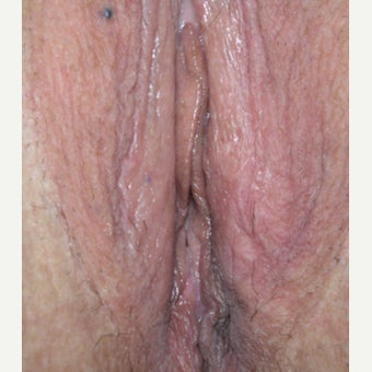 54 year old woman treated with Perineoplasty after 2008294
