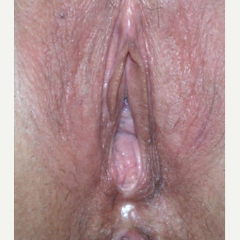 54 year old woman treated with Perineoplasty before 2008294