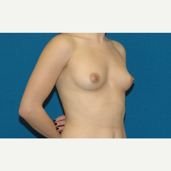 22 year old woman treated with Breast Implants before 3208341