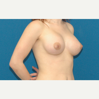 22 year old woman treated with Breast Implants after 3208341